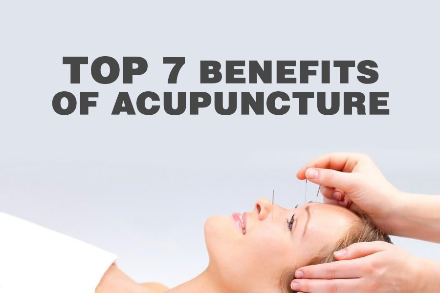 MindInsole Shoe Inserts Blog Top 7 Benefits of Acupuncture