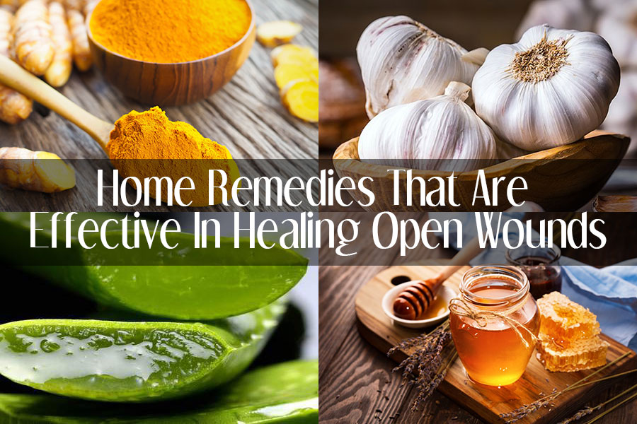 Home Remedies That Are Effective In Healing Open Wounds